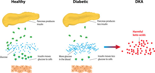 chart explaining diabetic ketoacidosis