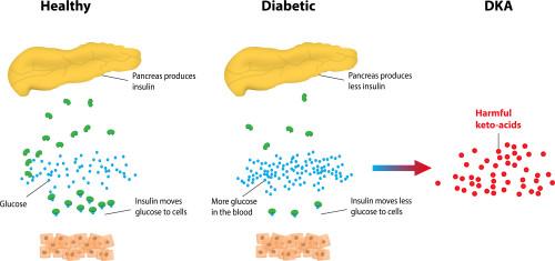 chart explaining diabetic ketoacidosis
